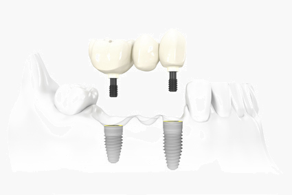 toronto dental implants
