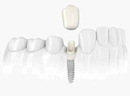 north york dental implants